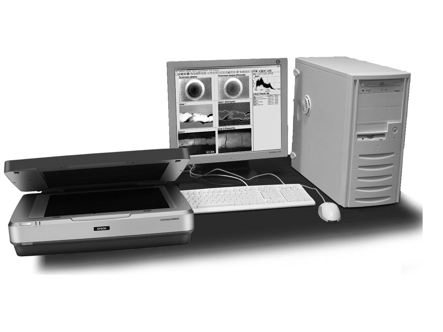Цифровая обработка рентгеновских пленок Унирен 3040